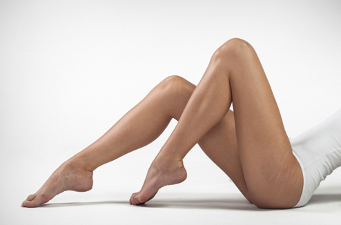 Vergetures sur le haut des jambes
